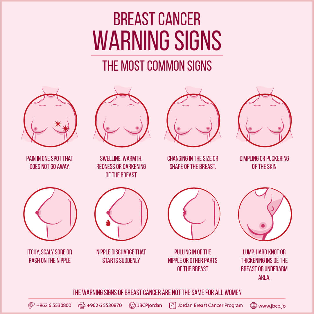 Pictures of signs of breast cancer